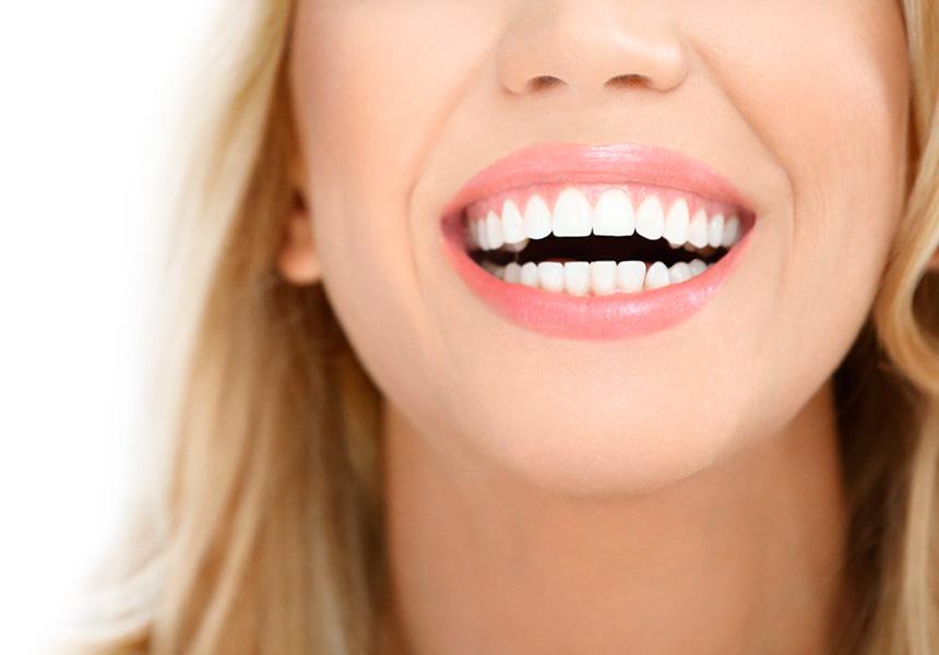 есть последствия новые фото красивых зубов начинают приносить ритцу